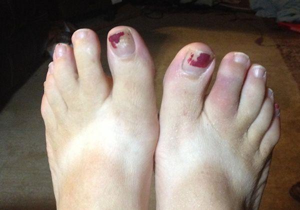 Injured Toes