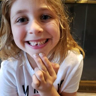 A Lost Tooth